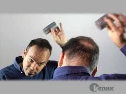 CORRECTION DE LA CALVITIE - CORRECTION DE CALVITIE - HAIR TENDANCE - Voir en grand
