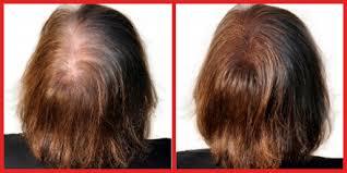 poudre cheveux fem.png - Voir en grand