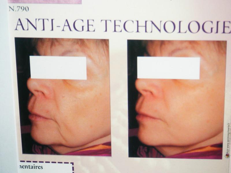 lifting ultrasonic - soins anti-rides - Institut de beauté Krystyna - Voir en grand